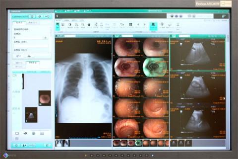デシタル画像診断システム